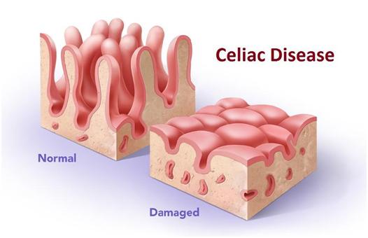 celiacdisease